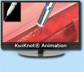 KKSS-Animation